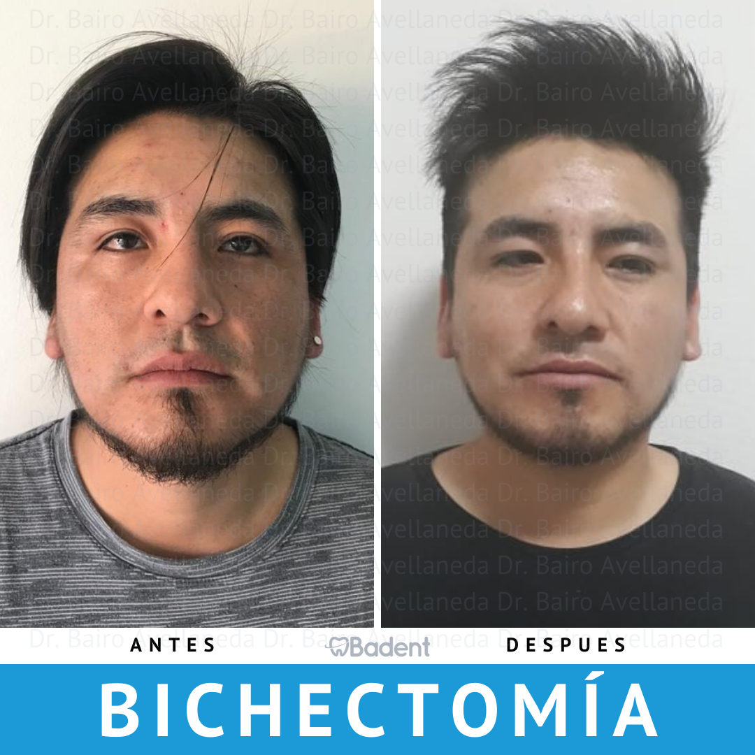bichectomia antes y despues